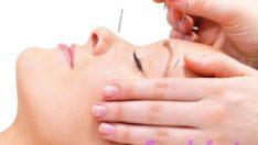 Akupunkturun Faydaları