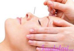 Akupunktur Yararları