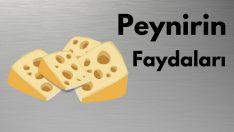 Peynir ve süt ürünlerinin faydaları