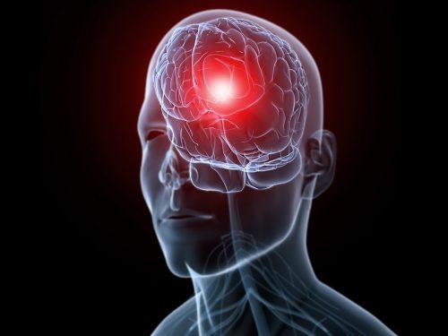 arveles baş ağrısına iyi gelir mi, baş ağrısını keser mi, ağrısını geçirir mi?